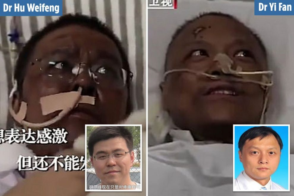 Wuhan doctors' skin changes colour after coronavirus battle left them fighting for their lives