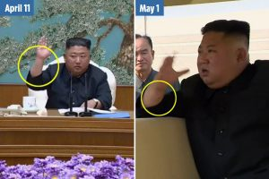 Kim Jong-un reappears with new 'needle mark' on wrist suggests hes undergone heart surgery, medical experts claim