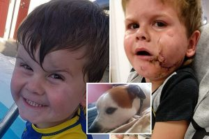 Adorable two-year-old boy has face 'ripped in half' by Staffie named Zeus that tried to snatch his food