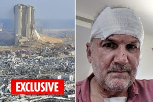I thought Beirut blast had blinded me… but it was blood from a wound filling up my eyes, says Brit survivor